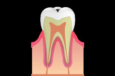 エナメル質のむし歯:C1
