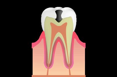 象牙質のむし歯:C2